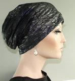 alopecia haarziekte